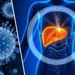 Definición de Hepatitis A