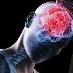 Definición de Conmoción Cerebral