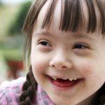 Definición de Síndrome de Down