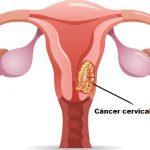 Definición de Cáncer cervical